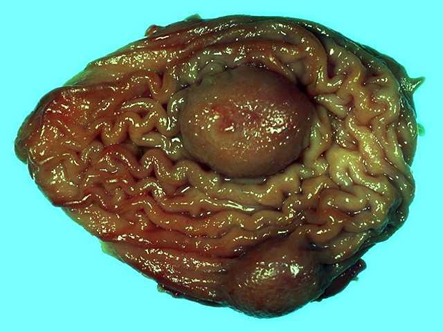 Stomach Parasites >> Stomach Worms Troccap